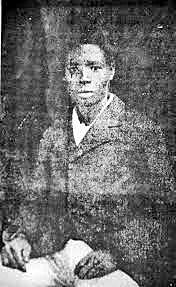 Edmond Albius 2